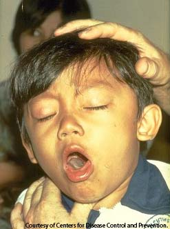 PHOTO: Young boy coughing from Pertussis also known as whooping cough